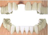 Отсутствие одного зуба.