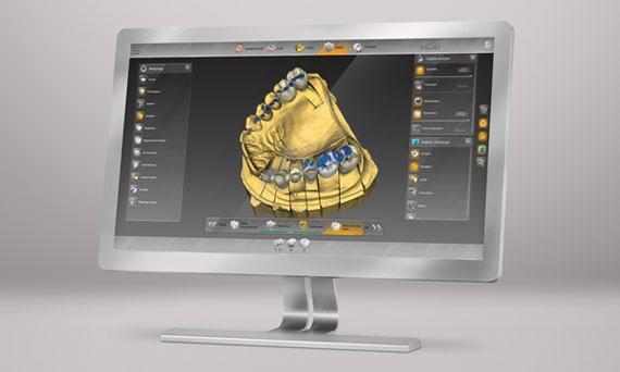 3D-модель челюсти