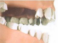 Отсутствие трех зубов на верхней челюсти.