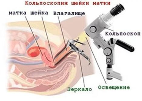 Кольпоскопия шейки матки