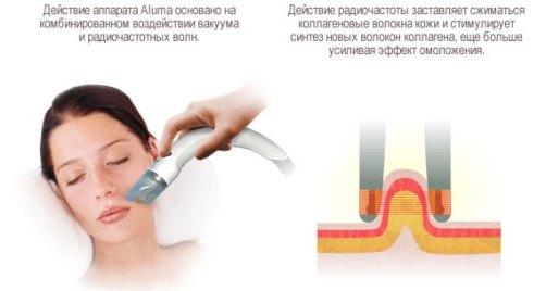 Действие косметологического аппарата Aluma