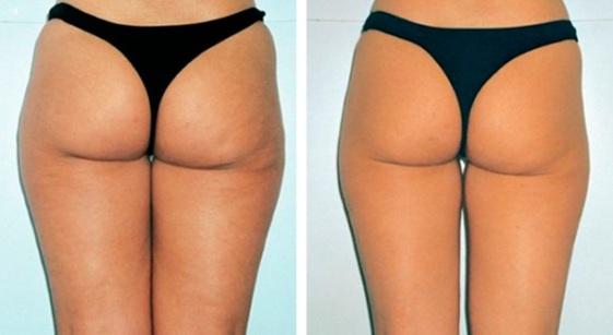 Антицеллюлитный массаж - до и после