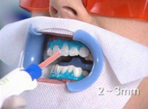 Нанесение состава Beyond Max на зубы.
