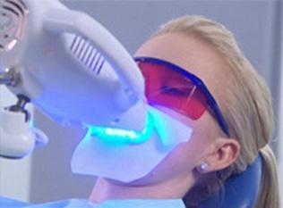 Отбеливание зубов с помощью лампы-акселератора