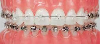 Брекеты Damon для зубов.
