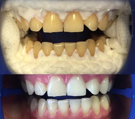 Изменение цвета зубов до и после отбеливания.