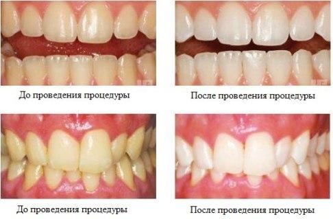 Изменение цвета зубов до и после домашнего отбеливания.