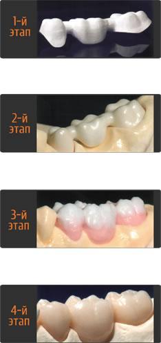 Этапы разработки протеза для зубов