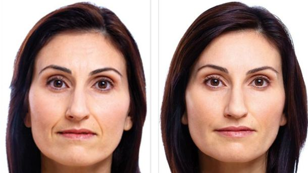 Биоревитализации лица - до и после
