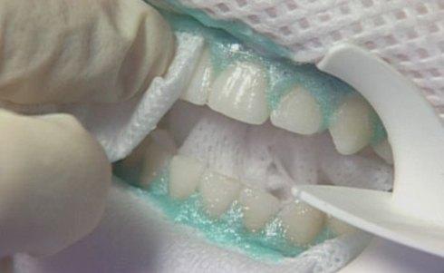 Нанесение отбеливающего состава на зубы.