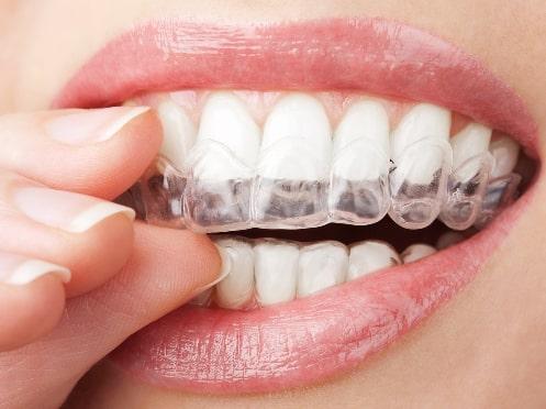 Каппа надевается на верхний ряд зубов.