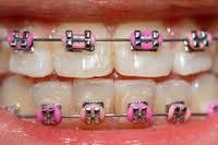 Самолигирующие брекеты с тесным положением зубов.