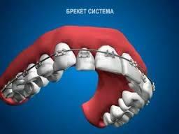 Брекет-система для верхней челюсти.