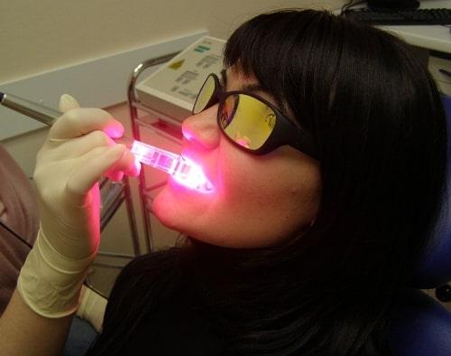 Процедура отбеливания зубов лазером