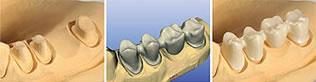 Изготовление протезов для зубов