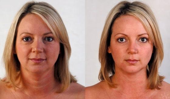 до и после подтяжки лица - фото 2