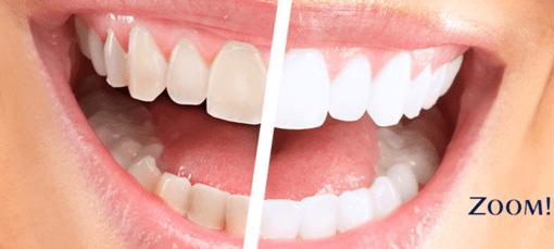 Фото до и после лазерного отбеливания зубов