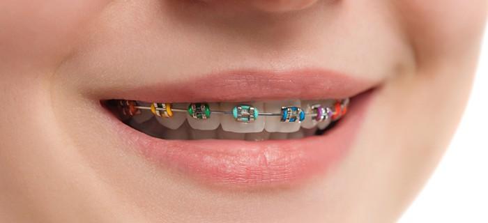 Брекеты, установленные на верхний ряд зубов.