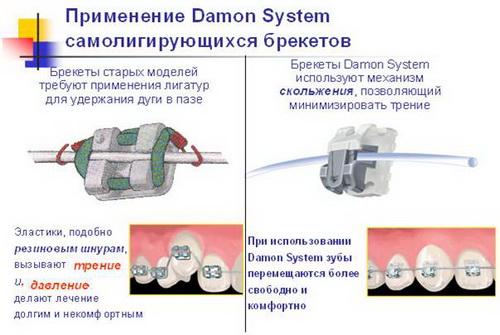 Применение брекет-системы Damon