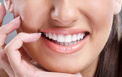 Внешний вид зубов после отбеливания.