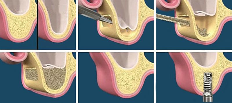 Наращивание костной ткани через введение остеопластического материала.