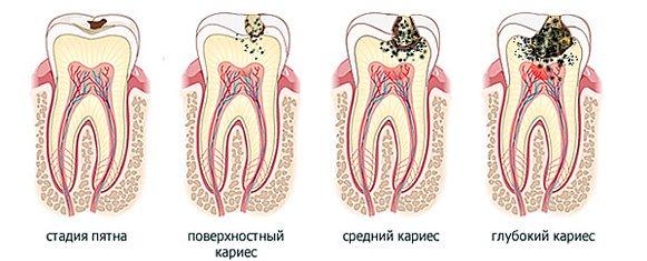 4 стадии кариеса зубов.