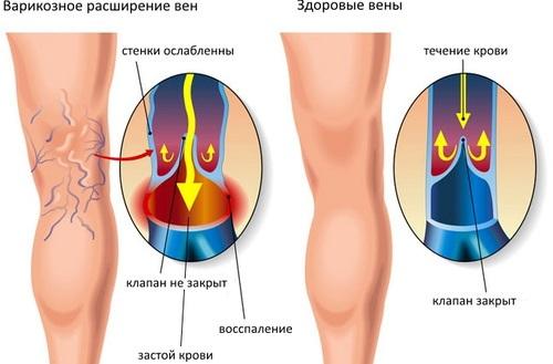 Ультразвуковое исследования сосудов ног.