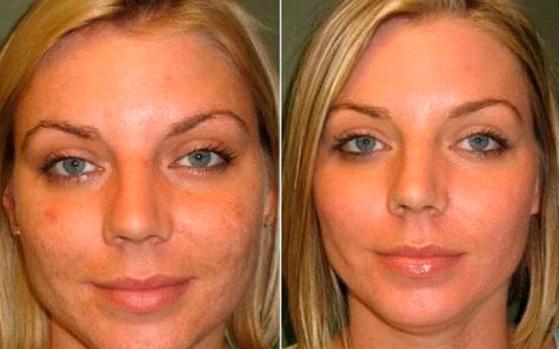 До и после миндального пилинга - фото 3