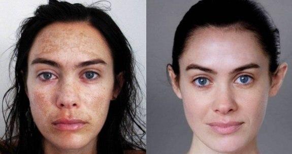 Фото 2 - до и после желтого пилинга лица