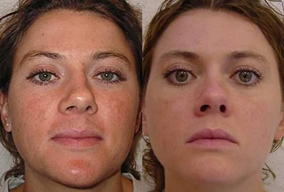 Фото 3 - до и после желтого пилинга лица