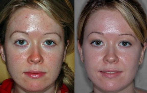 Фото 1 - до и после желтого пилинга лица