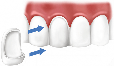 Один винир устанавливается для одного зуба.