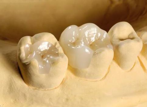 Вкладка в зуб