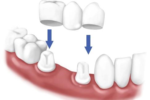 Установка моста на зубы