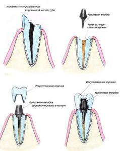 виды зубных вкладок