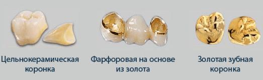 Виды коронок на зубы