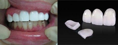Виниры, установленные на верхний ряд зубов.