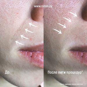 Акупунктура до и после