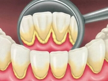 Зубной налет