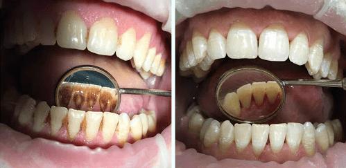 Фторирование зубов - До и После
