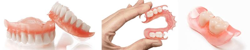 Виды нейлоновых протезов